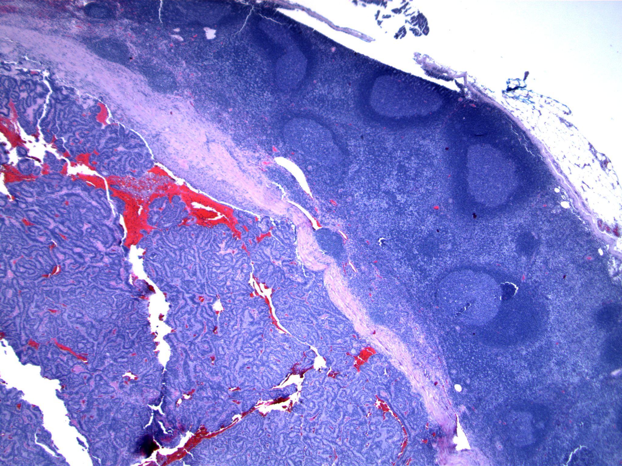 Image 1. A lymph node contains an epithelial proliferation.