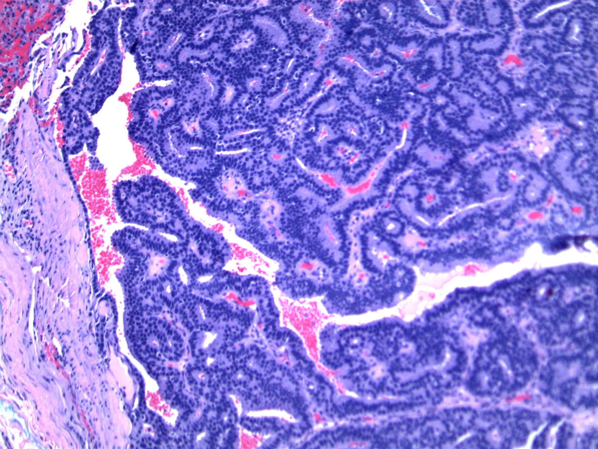 Image 3. Fibrous duct wall is lined by a single layer of cuboidal epithelium.