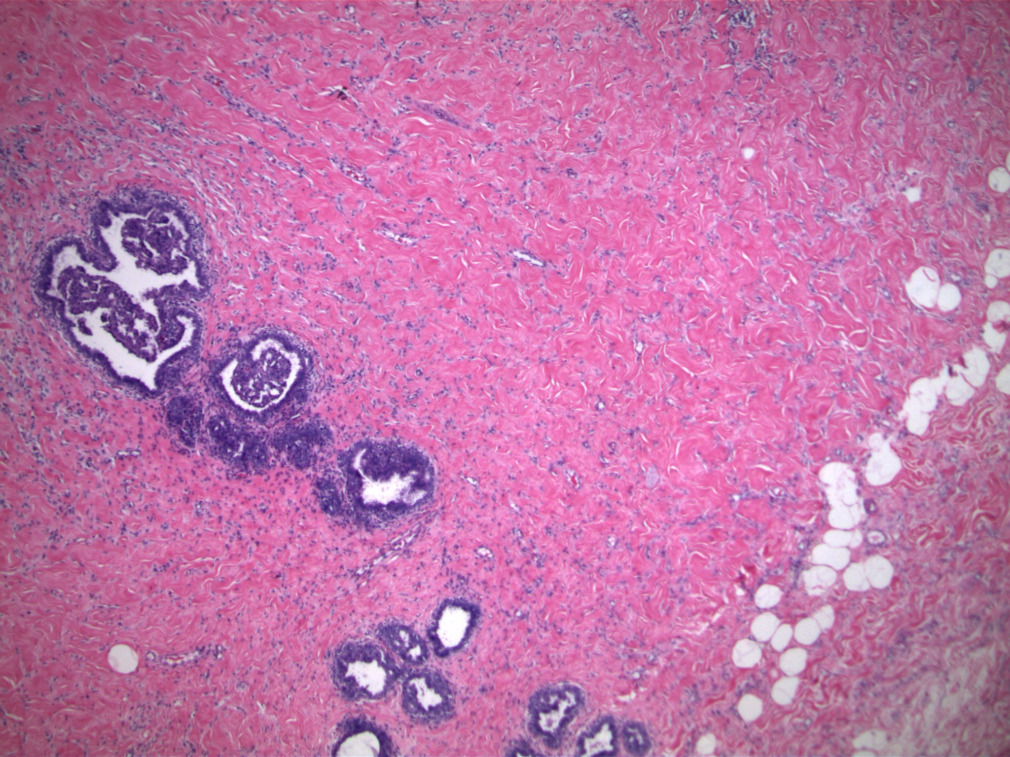 Image 1.  Dense stromal fibrosis surrounds a lobular unit that contains an epithelial proliferation.