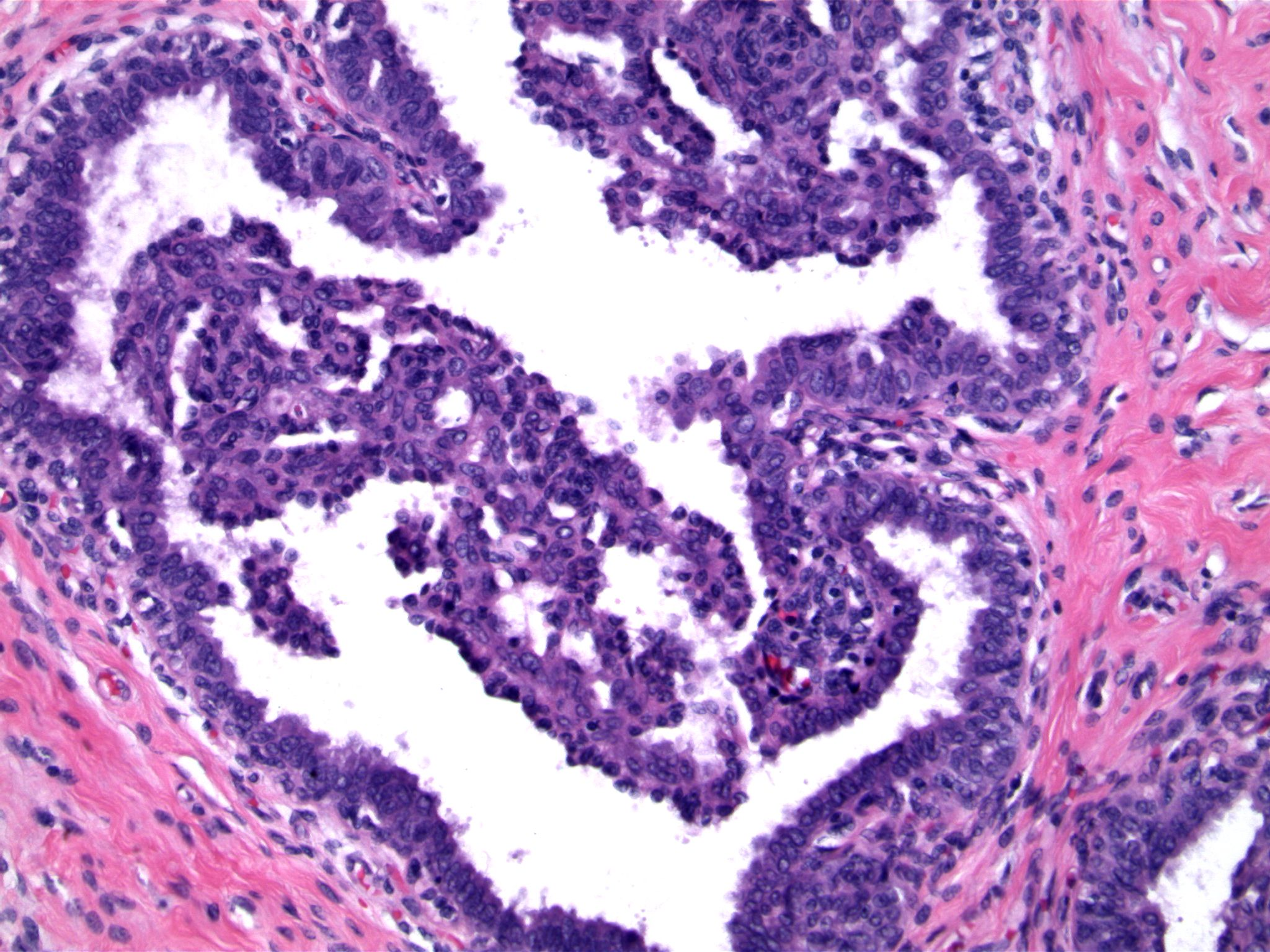 Image 2.  Although the epithelial proliferation is exuberant, the micropapillae are thin and tapering, reminiscent of the hyperplasia seen in gynecomastia.  nuclei are variable, and cellular overlap is evident.  the tips of the micropapillae contain pyknotic cells