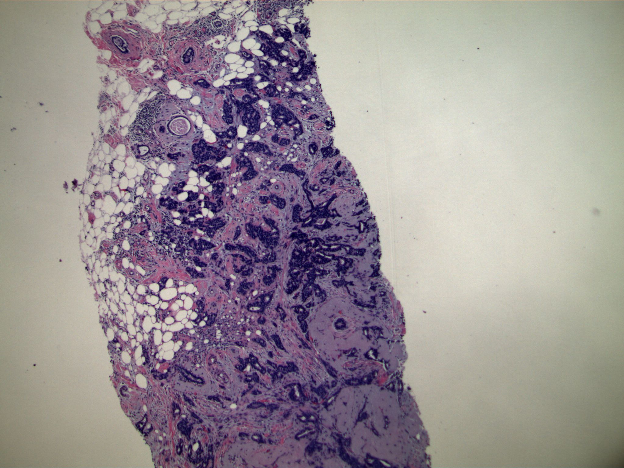 Image 1.  Core biopsy specimen showing diffusely infiltrative small nests and glandular structures.