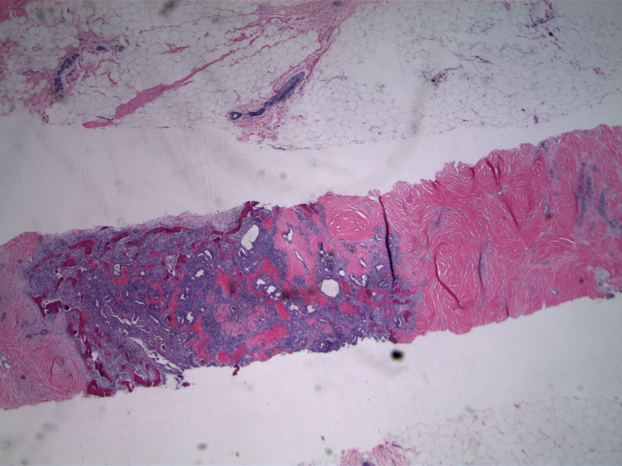 Image 1. Exuberant epithelial proliferation is associated with dense sclerosis (right) and ossification (left).