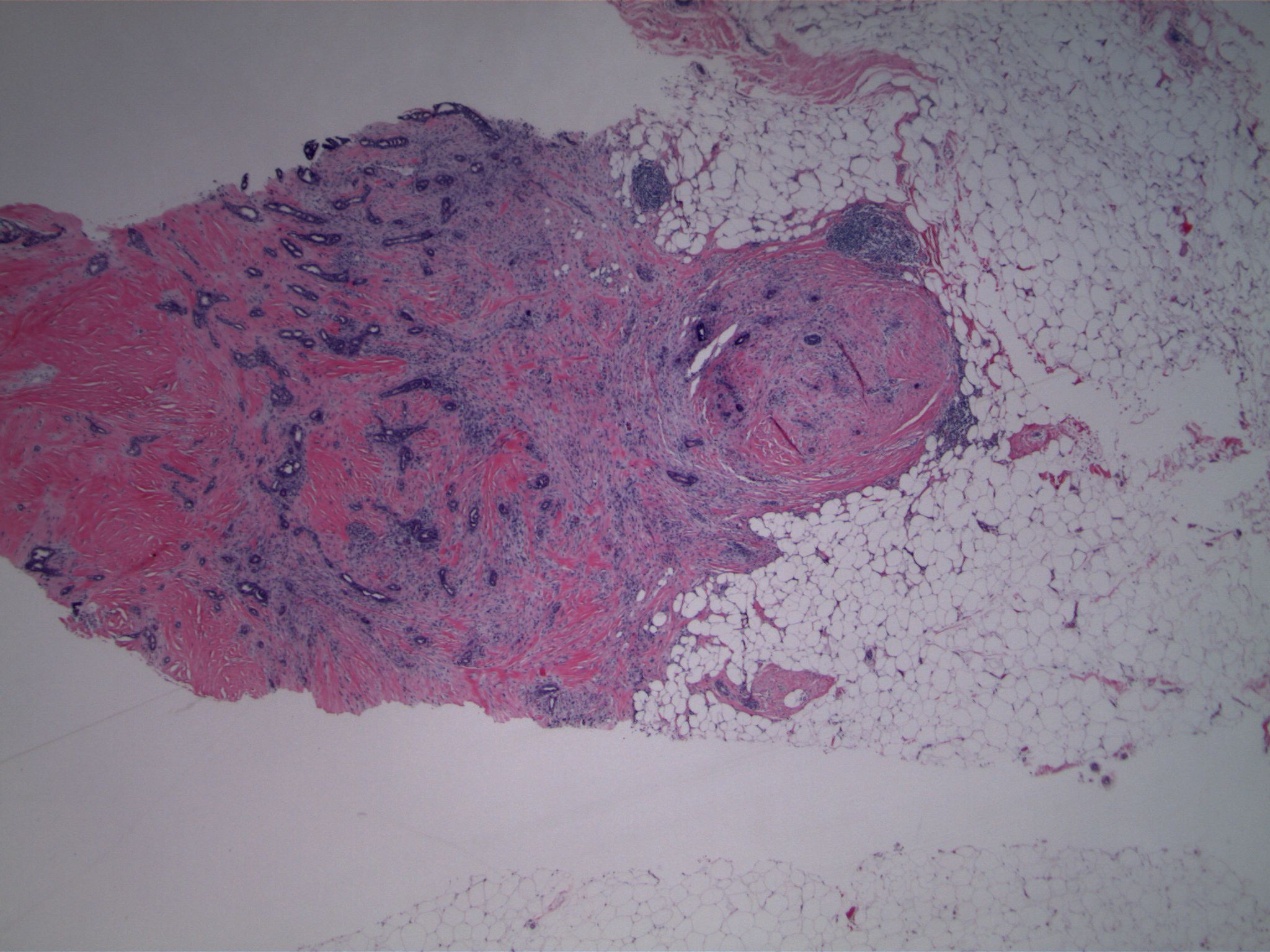 Image 4. At the opposite end of the core (just out of view to the right of image 1) there are irregularly placed small glandular structures associated with a desmoplastic spindled stroma, with infiltration into fat