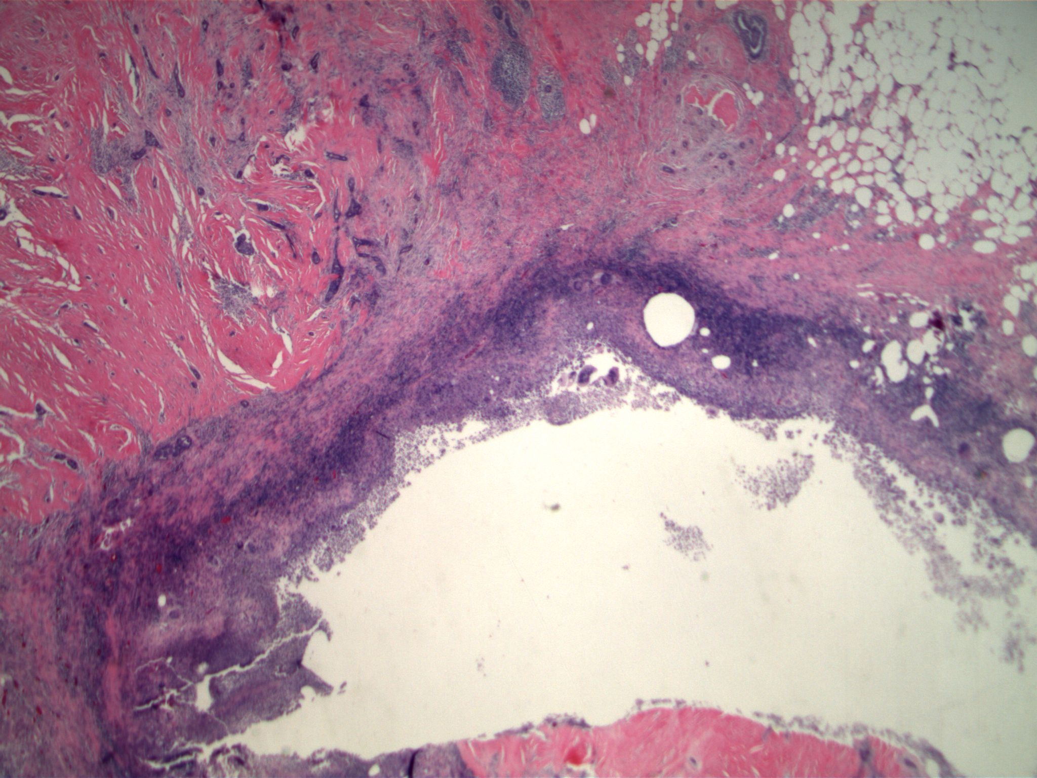 Image 2. The low grade adenosquamous carcinoma, originally diagnosed on core biopsy was present in the lumpectomy specimen. Note previous biopsy site