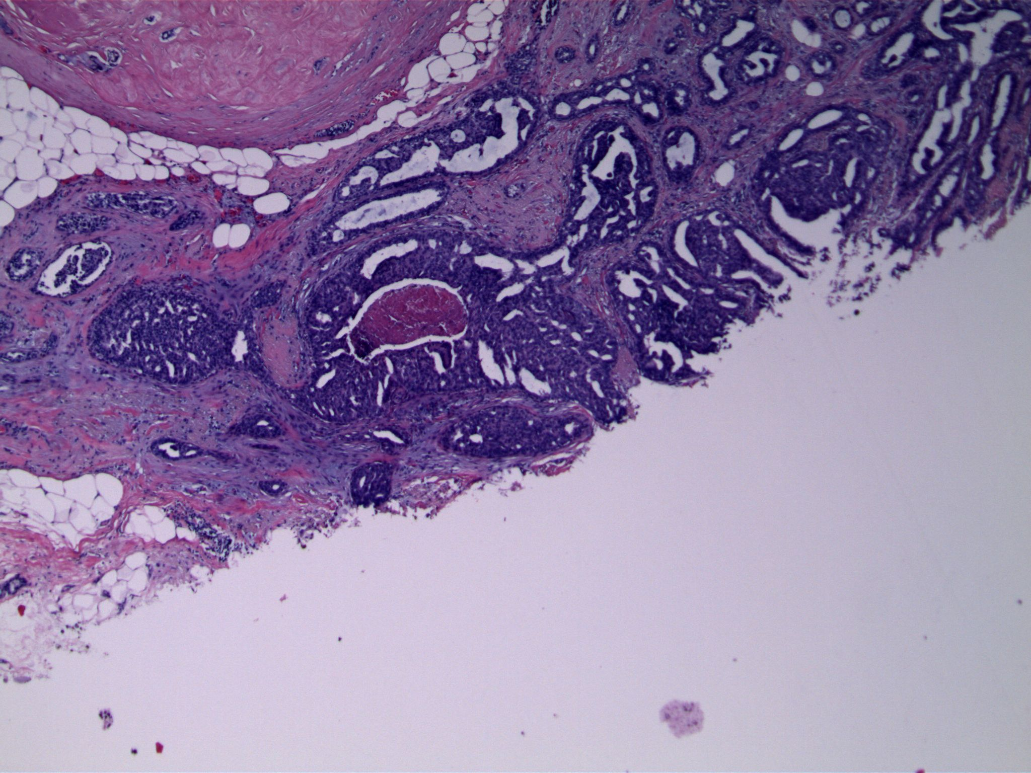 Image 1. An exuberant epithelial proliferation is present, associated with a sclerosed micropapilloma (upper left). Focal luminal necrosis is present.