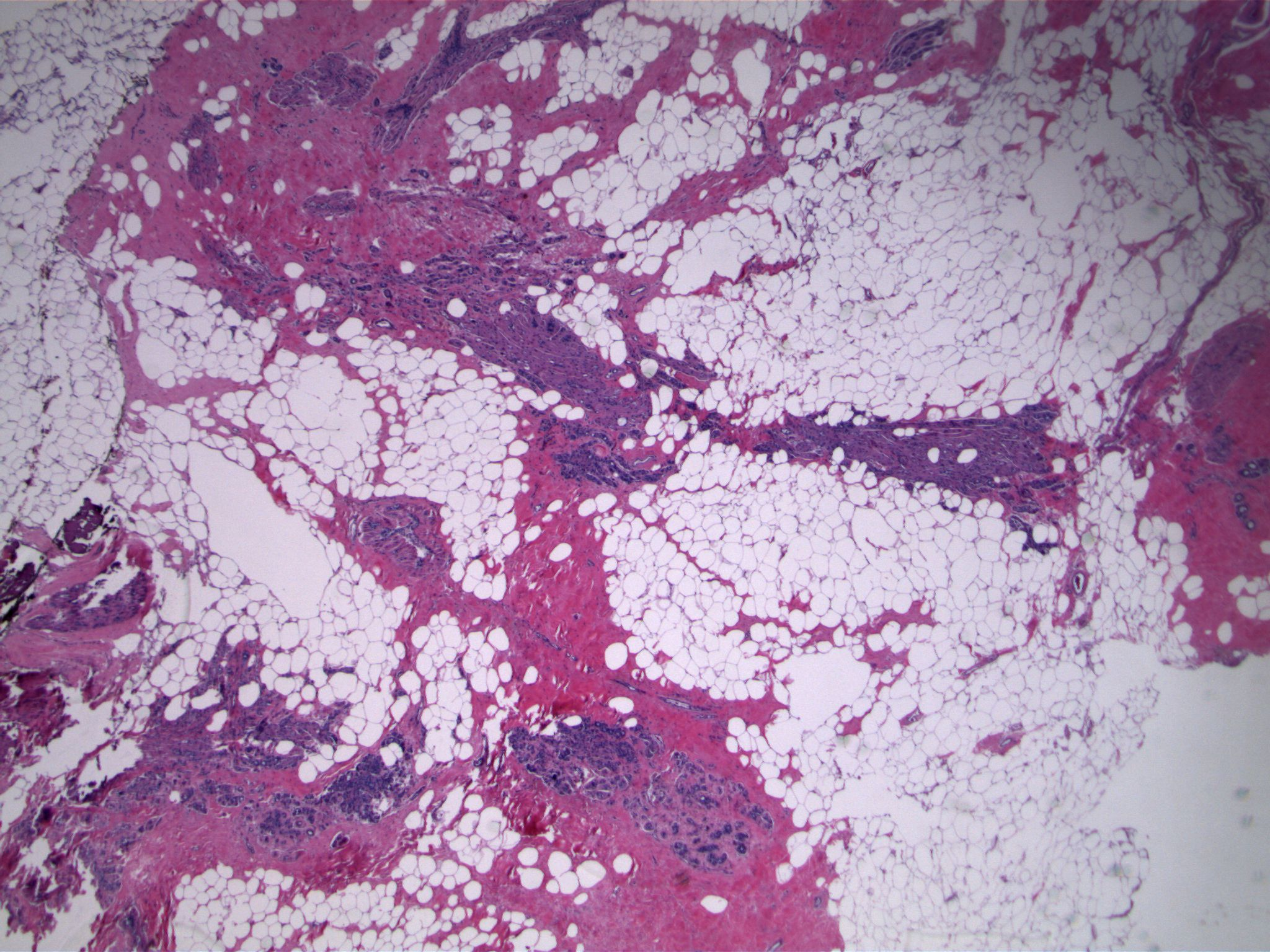 Image 1.  The biopsy specimen contains sclerosing adenosis, characterized by a proliferation of small, elongated glandular structures that are arranged parallel to each other.  At low power, the maintenance of a lobulocentric configuration is evident.