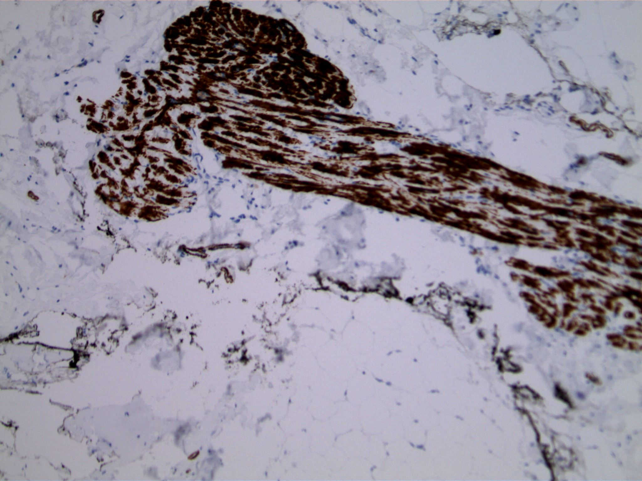 Image 5.  Immunohistochemistry using antibodies to smooth muscle actin highlights prominent myoid component in a longitudinally cut terminal duct.