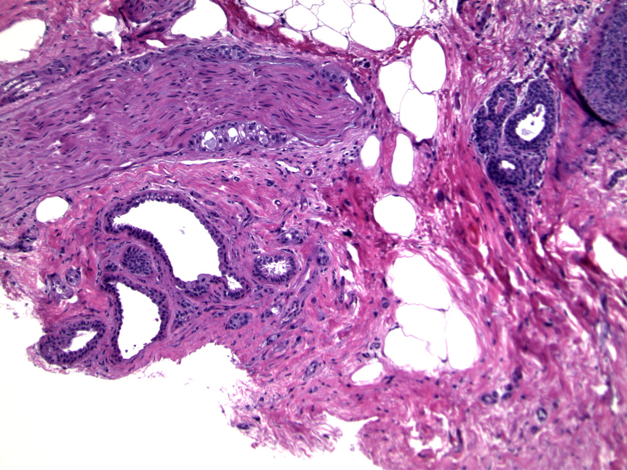 Image 1. Two lobular units, one of which has focal apocrine cytology.