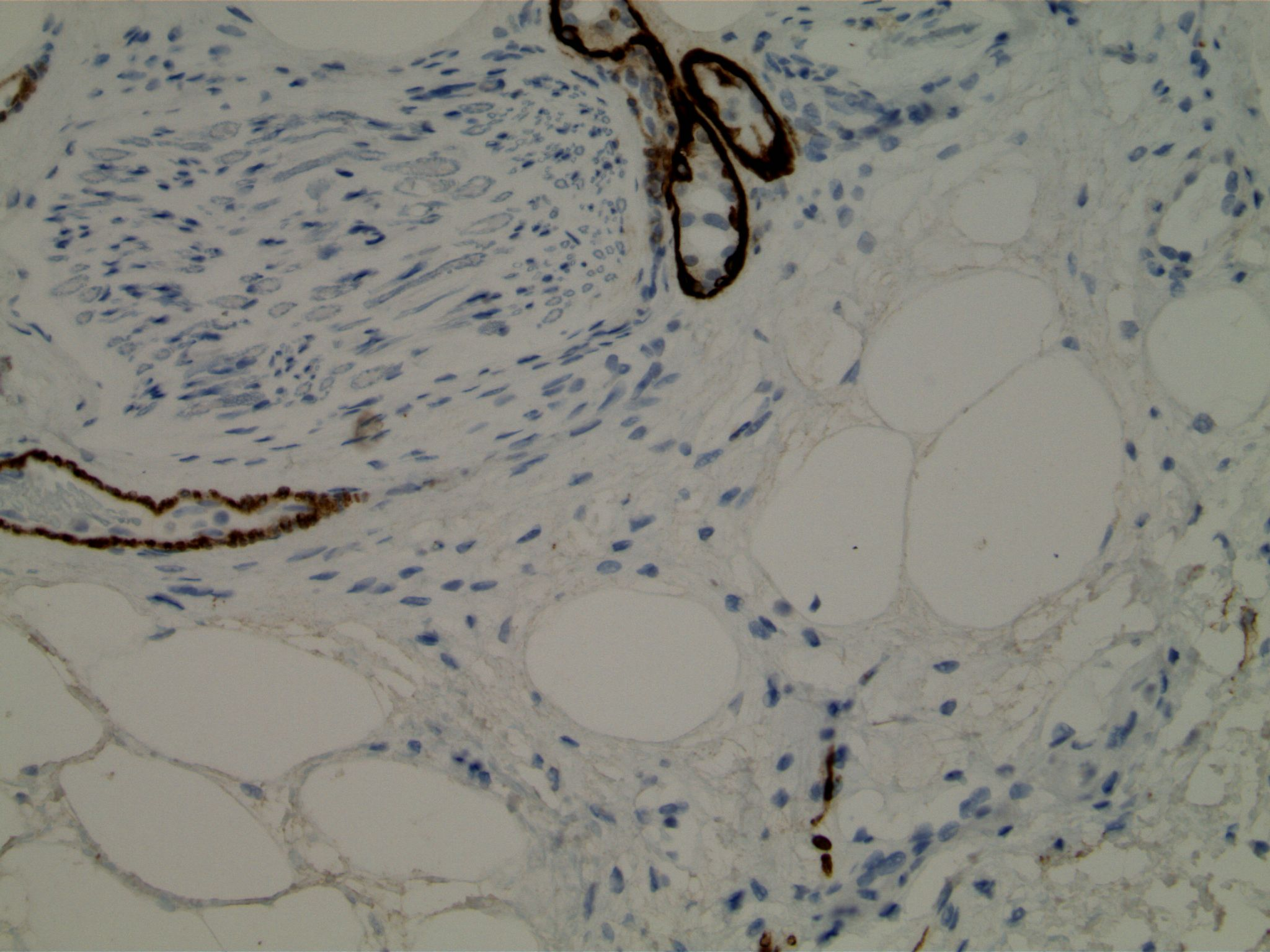 Image 5. Immunohistochemistry using antibodies to smooth muscle myosin heavy chain, demonstrating basement membrane material in normal acini and in perineurial glands.