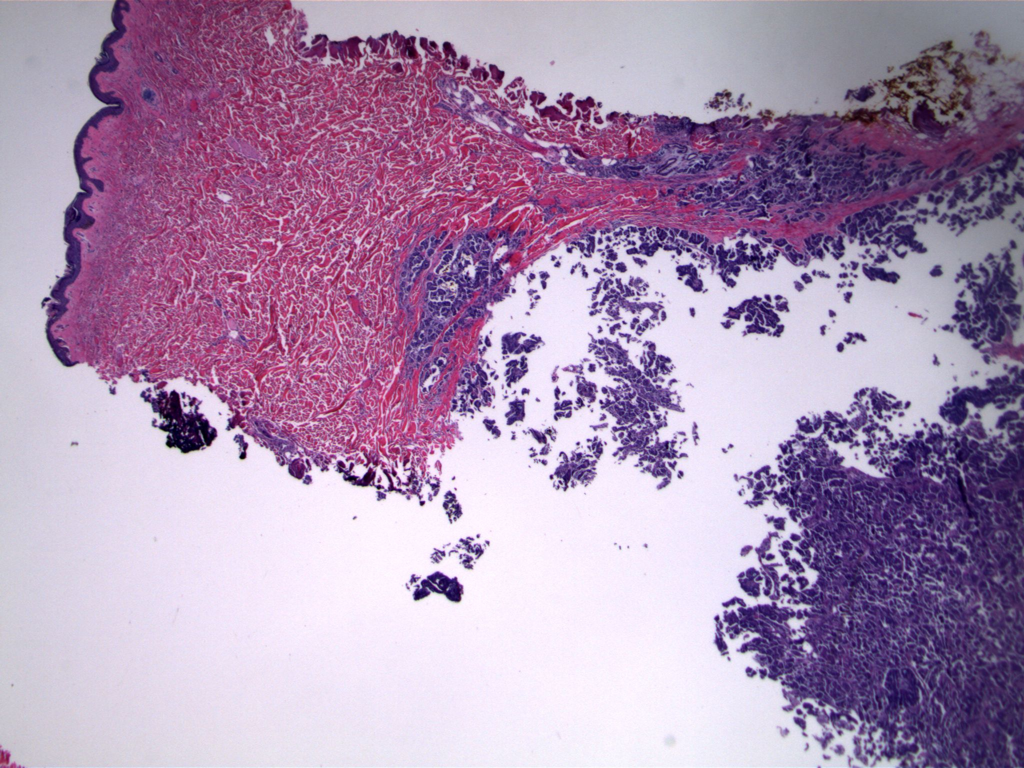 Image 1. The dermis contains numerous small cellular clusters. Normal skin adnexal structures are present (upper center)