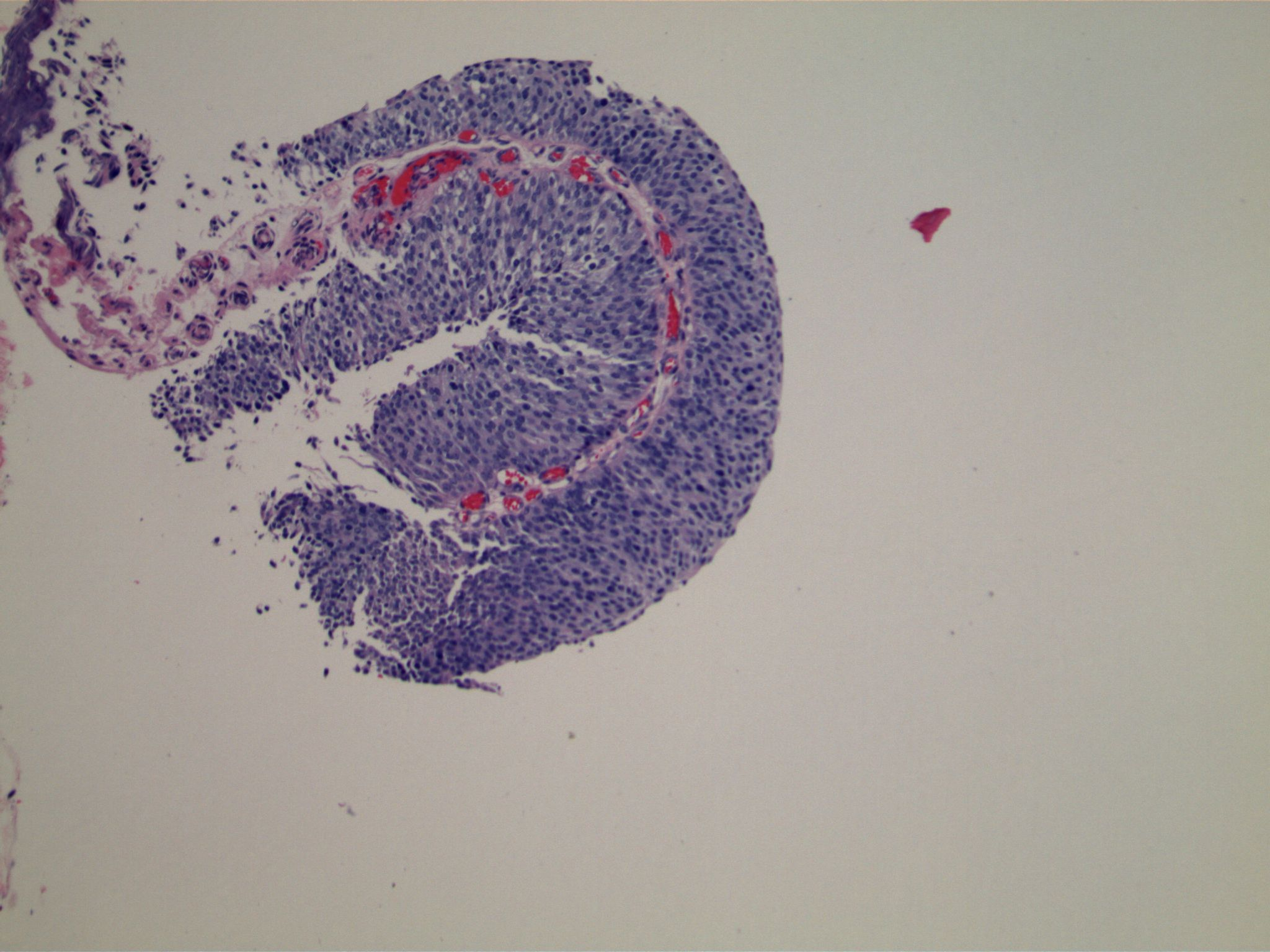 Image 2.  Apparent fibrovascular cores are beneath a proliferation of uniform cells.