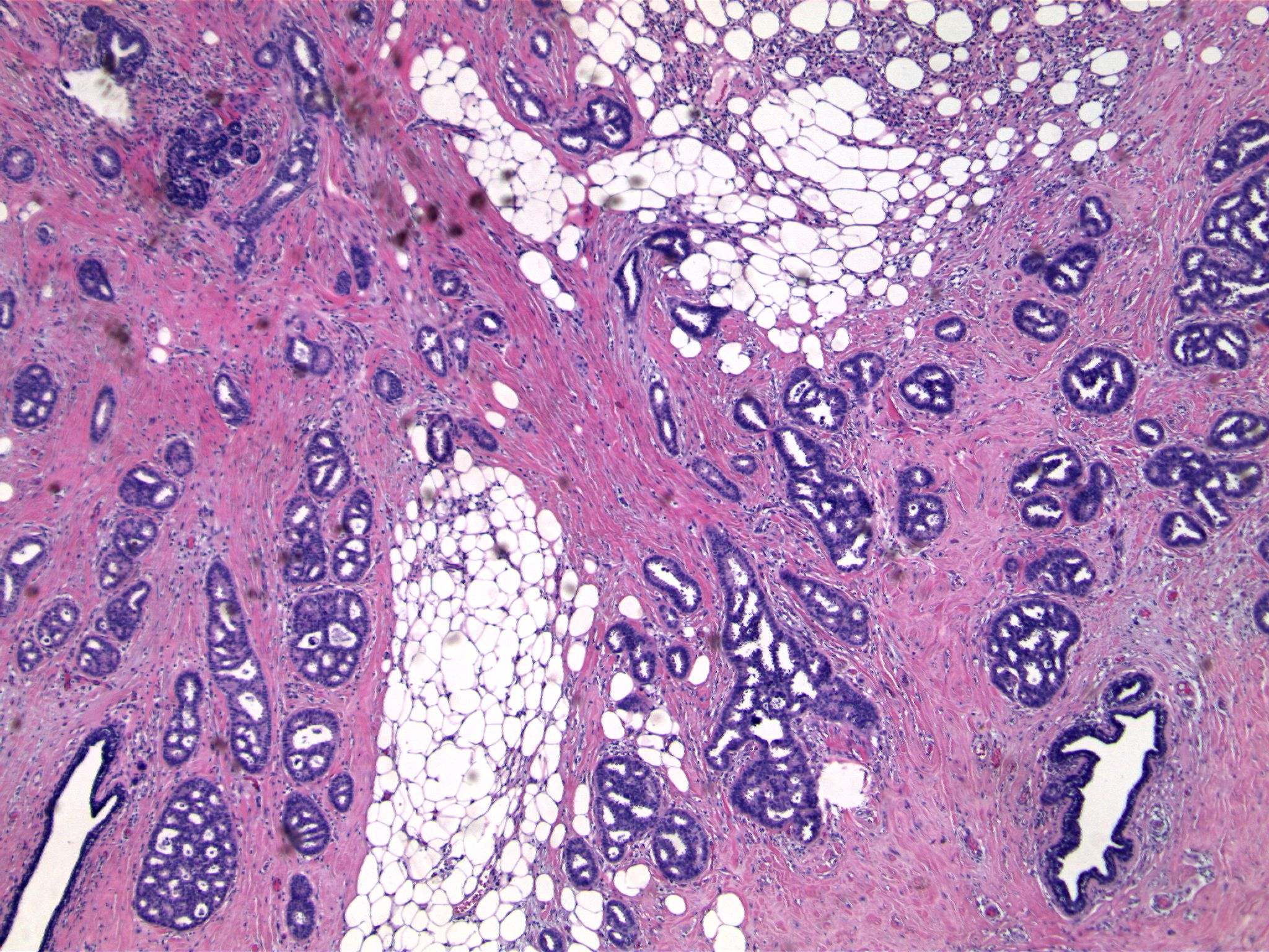 Image 4.   Diffusely infiltrating cribriform structures are present.  Note normal ducts (bottom left and bottom right), and previous biopsy site (upper right).  This pattern of infiltration is characteristic of invasive cribriform carcinoma