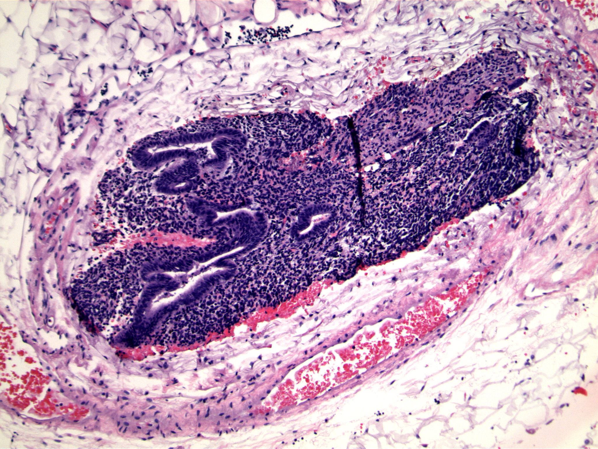 Image 6.   Bland columnar epithelium is associated with small round to oval blue cells.