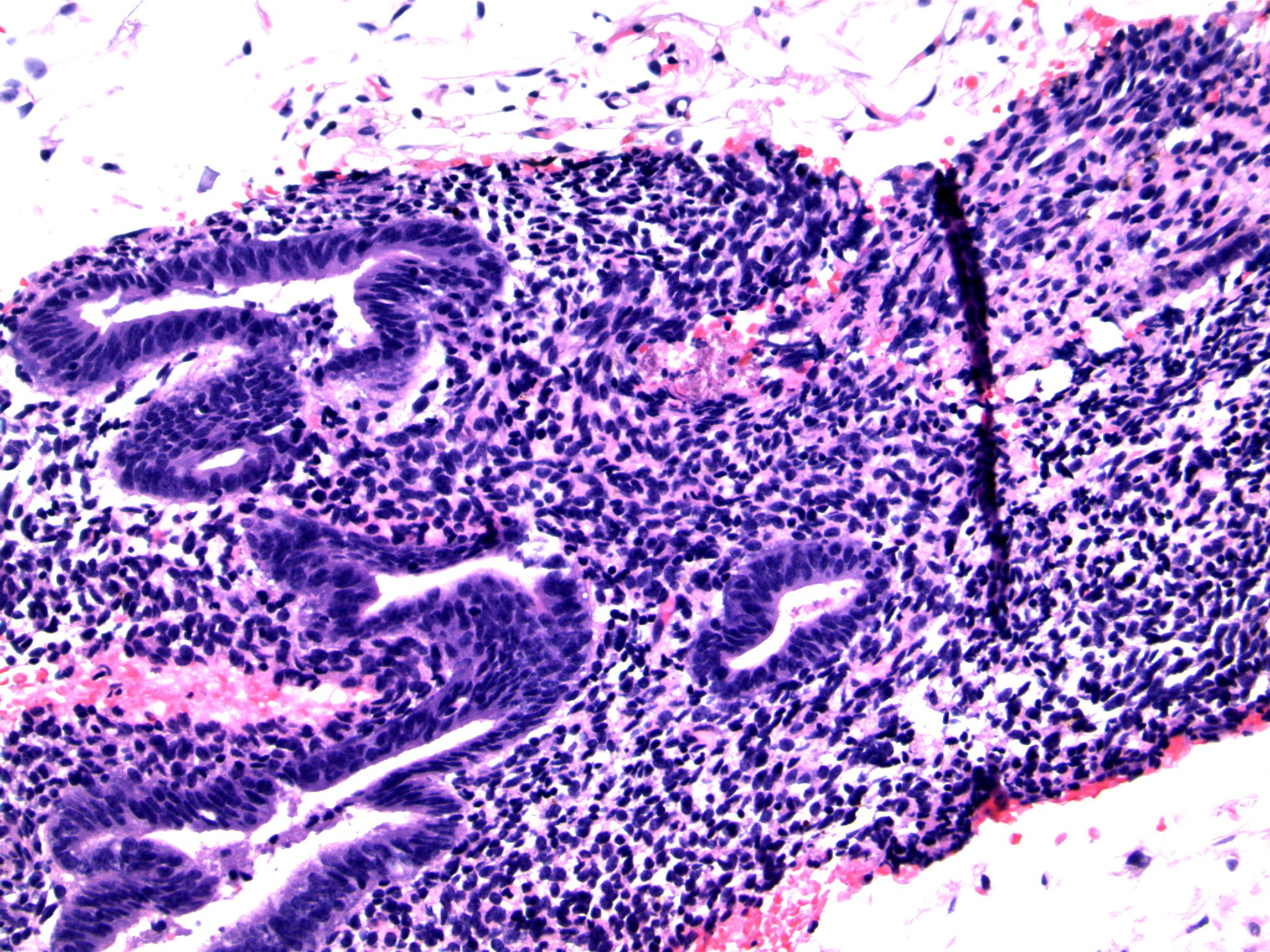 Image 7.  The bland columnar cells are associated with slightly spindled stromal cells and fibrin thombi