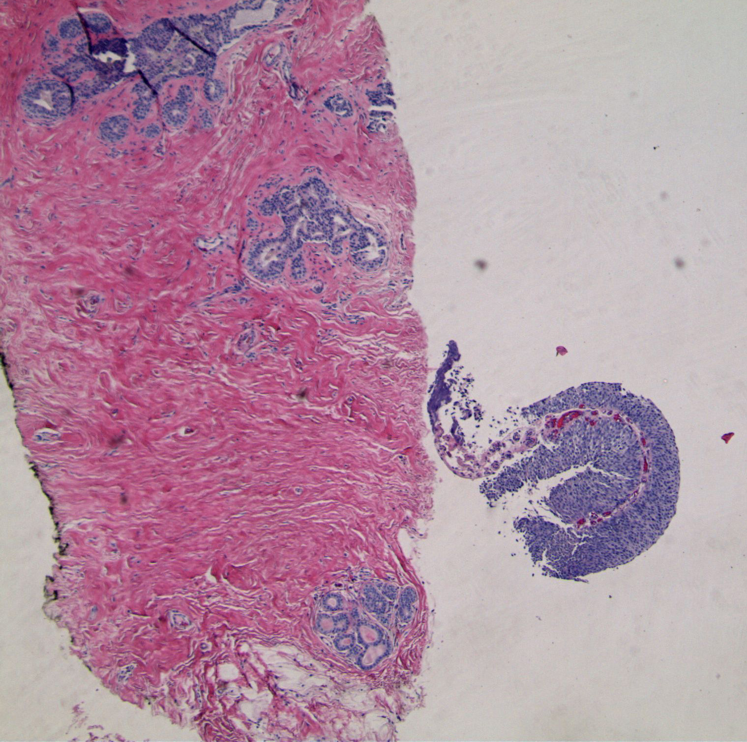 Image 1.  Interlobular stroma is dense, and there is mild hyperplasia (left).  A separate fragment of tissue is cellular and uniform (right).