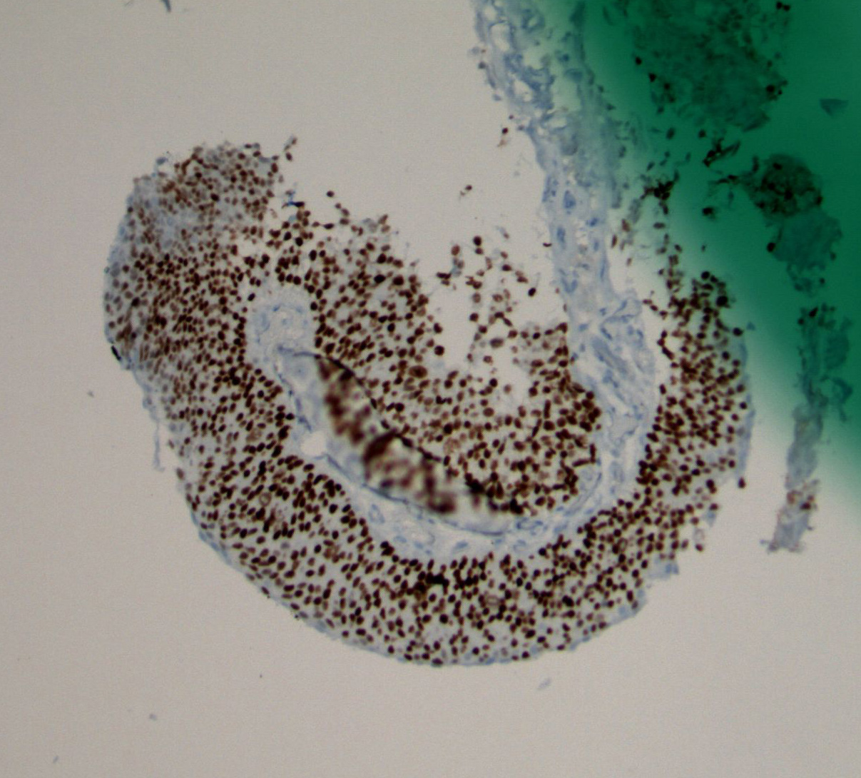 Image 3.  Immunohistochemical study shows diffuse, strong nuclear expression of p63.