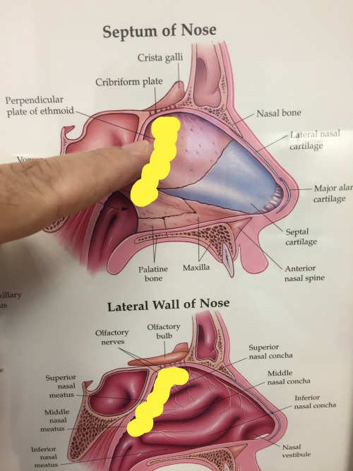 Yellow outline of the size and location of my tumor