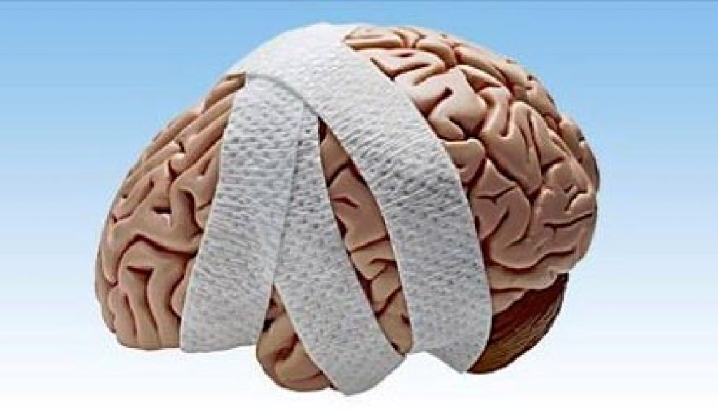 Image description: a plastic brain wrapped in bandages.