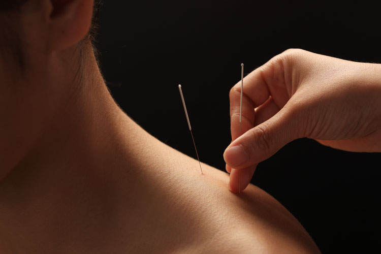 Acupuncture is my preferred healing modality // TheCuriousCoconut.com