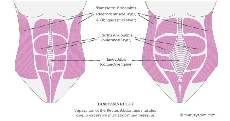Diastasis recti illustration from MuTuSystem.com