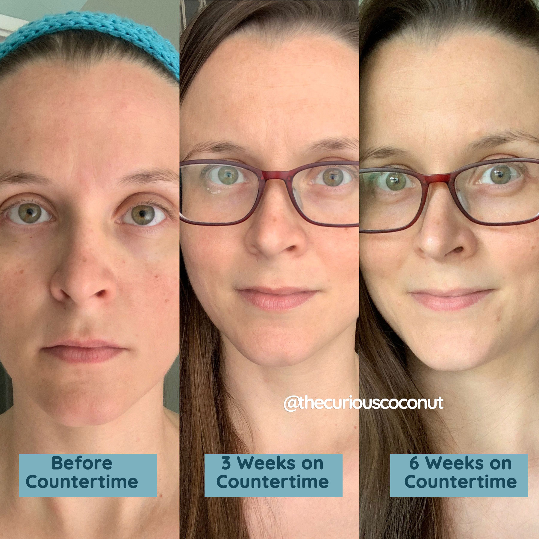 before and after countertime 6 weeks