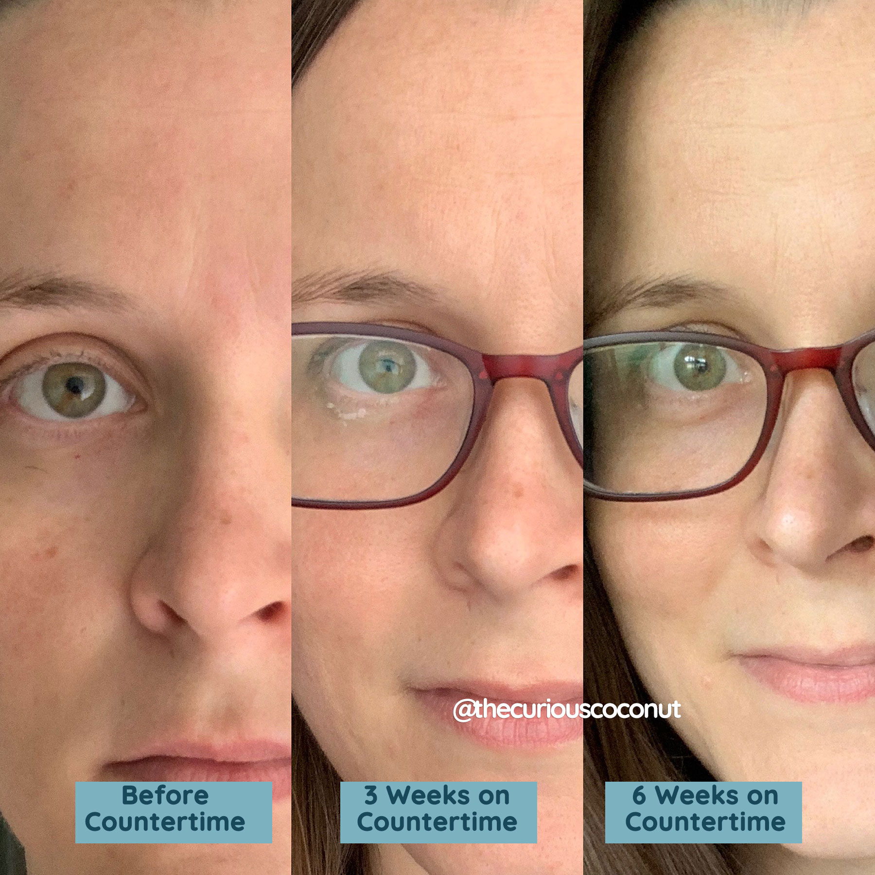before and after countertime vertical wrinkles forehead