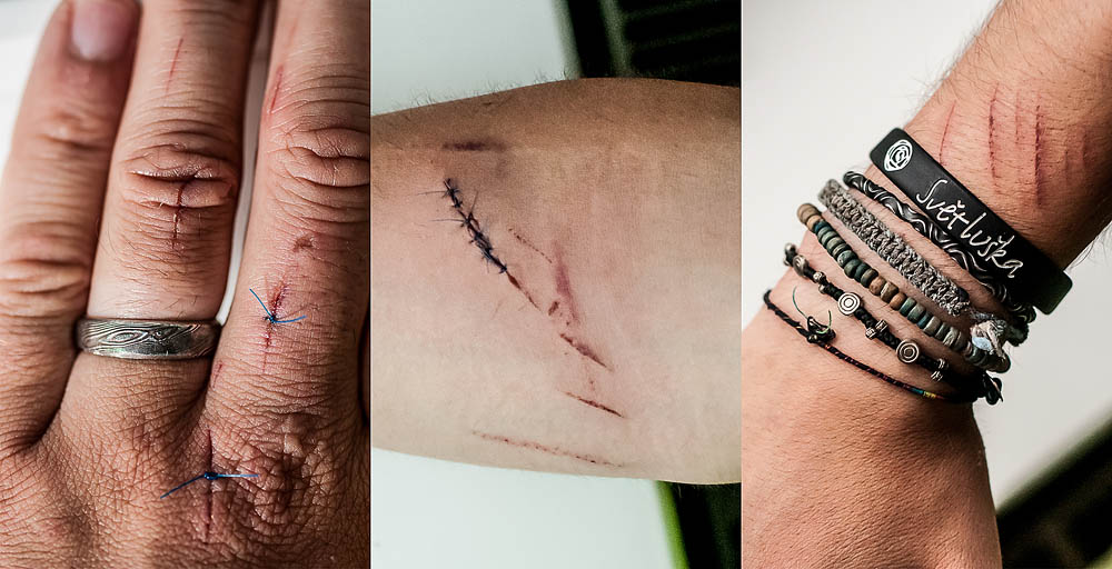 """6. července 2012, Krásná Lípa   Tak jsem po několika technických peripetiích poprvé nastartoval svůj krutej vrtulník!!! Výsledkem je šest stehů na pravém předloktí (vypadalo to jak z Matrixu) a dvakrát po jednom stehu na prstech levé ruky, k tomu asi deset sečných zářezů leckde jinde na prstech a taky různě po těle… hustý! Posekaná tráva, notebook komplet od krve, osekané nehty na levé noze. V lékařské zprávě mám napsáno: """"posekán vrtulí vrtulníku"""" − no kdo tohle má?"""