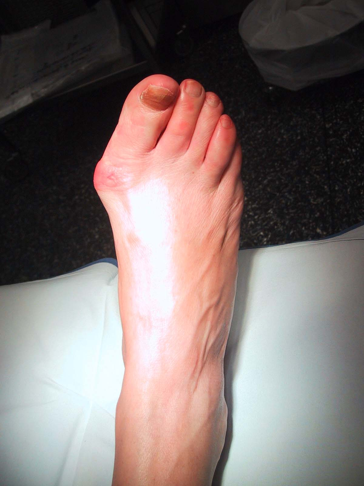 Running Program For Transitioning To Barefoot Shoes Minimalist Zero Drop Core Advantage