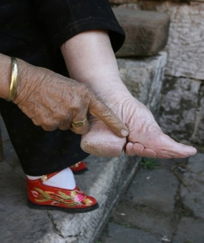 bound foot.jpg