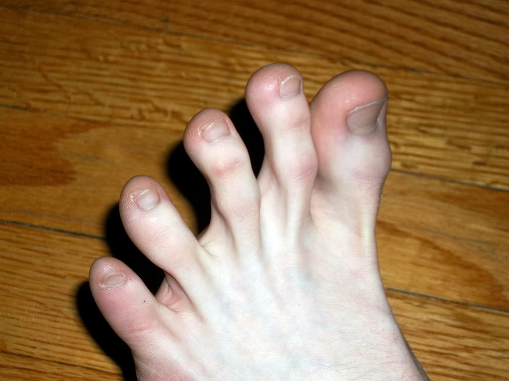 Seperating and spreading all five toes should be a normal level of mobility and control