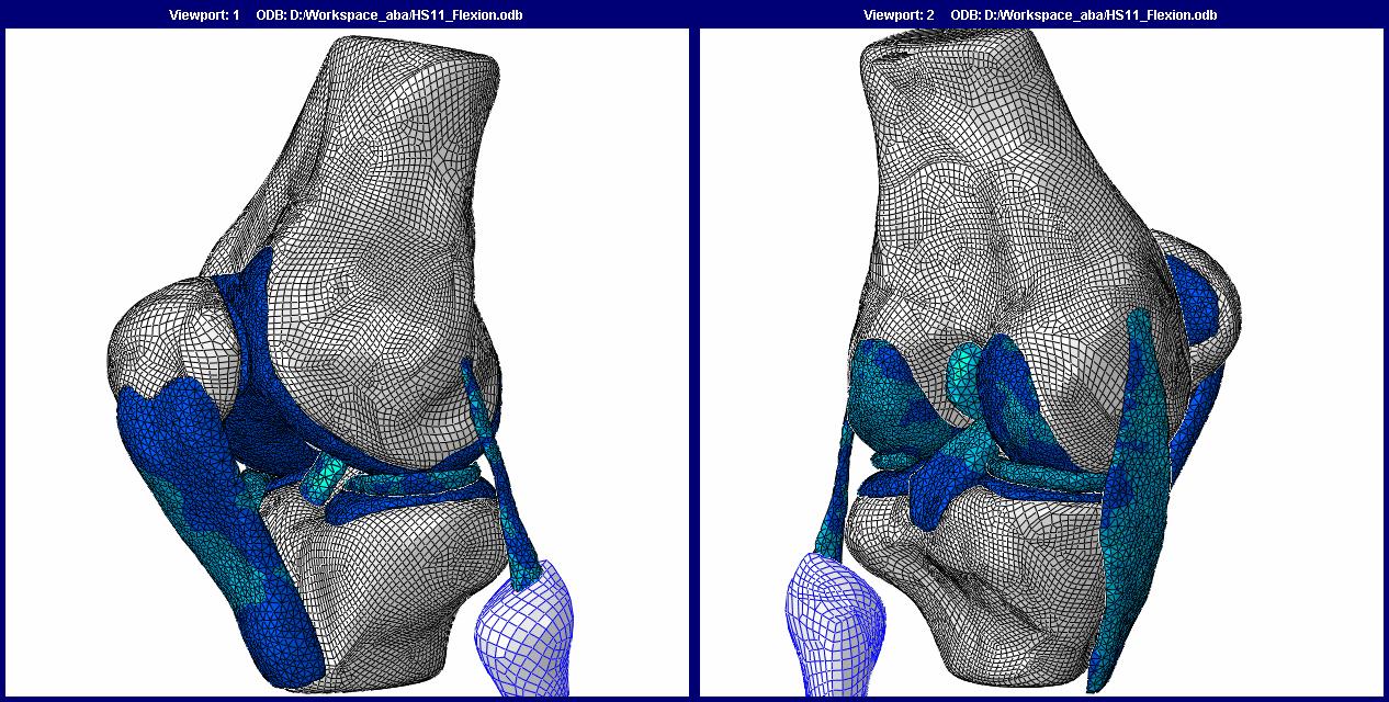 A finite element model of human knee joint (Naghibi Beidokhti et al. 2017)