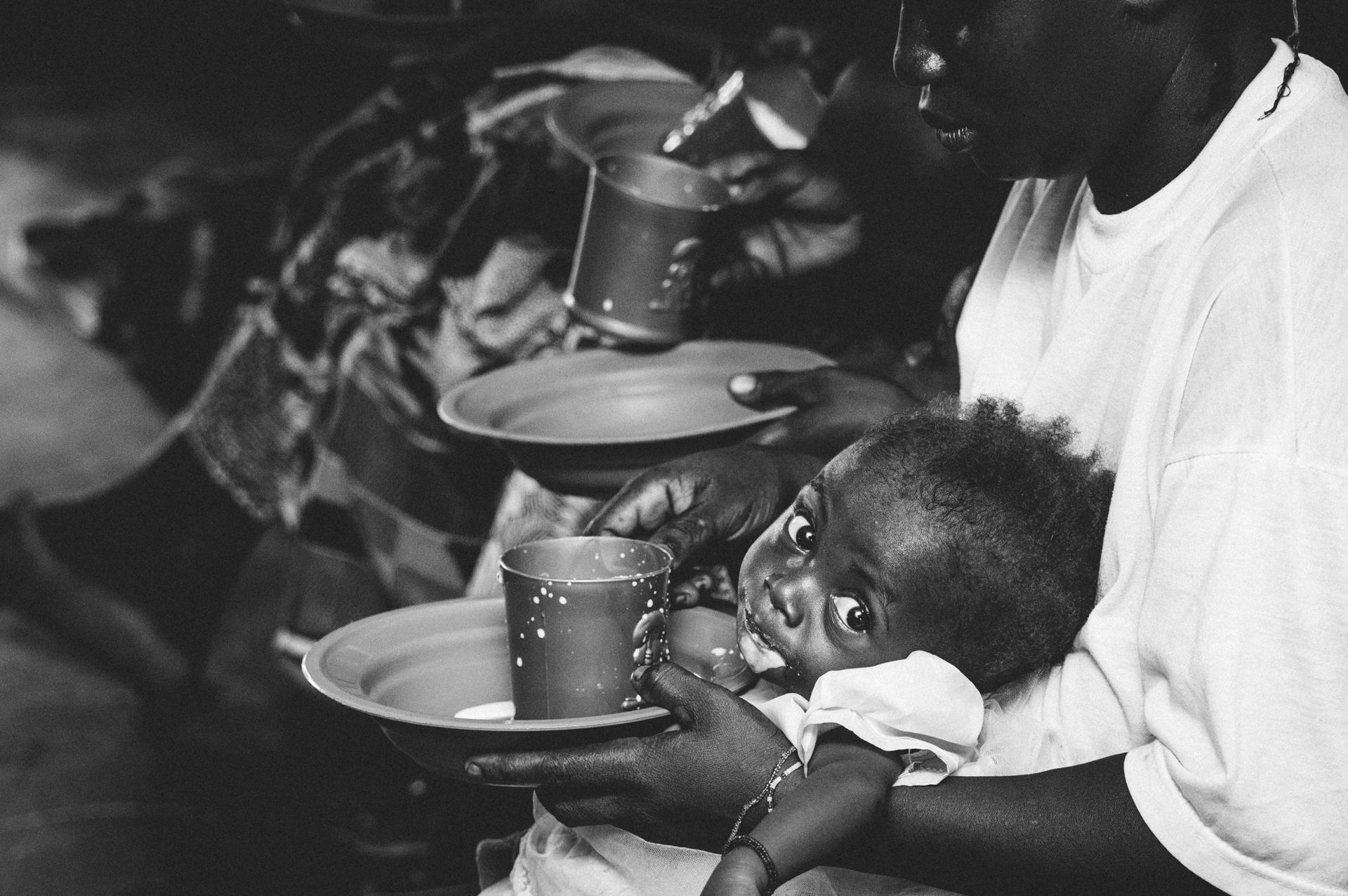 CAUSE Canada Sierra Leone Unicef Malnourished Children