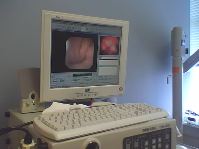 This is the video monitor where I was able to view my vocal cords in action.
