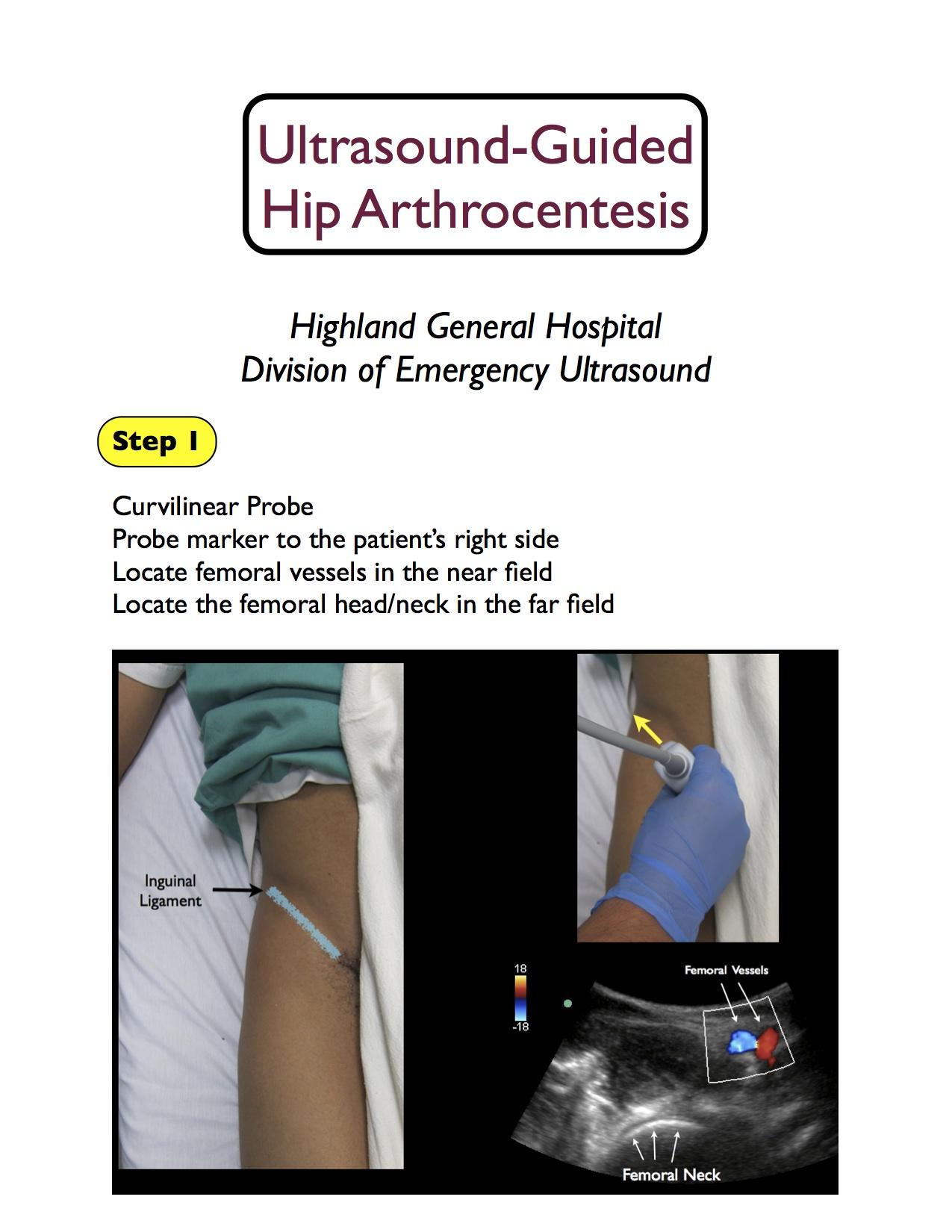 hip artrocentesis basic_1.jpg