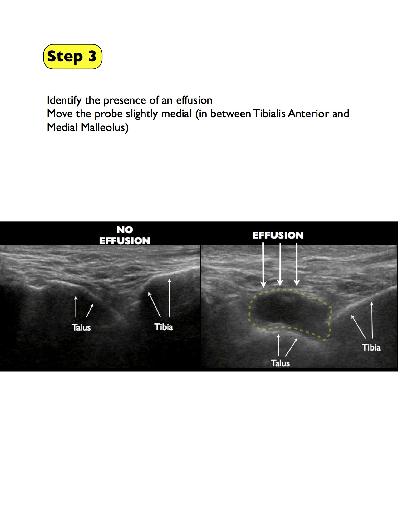 3 ankle arthrocentesis final.jpg