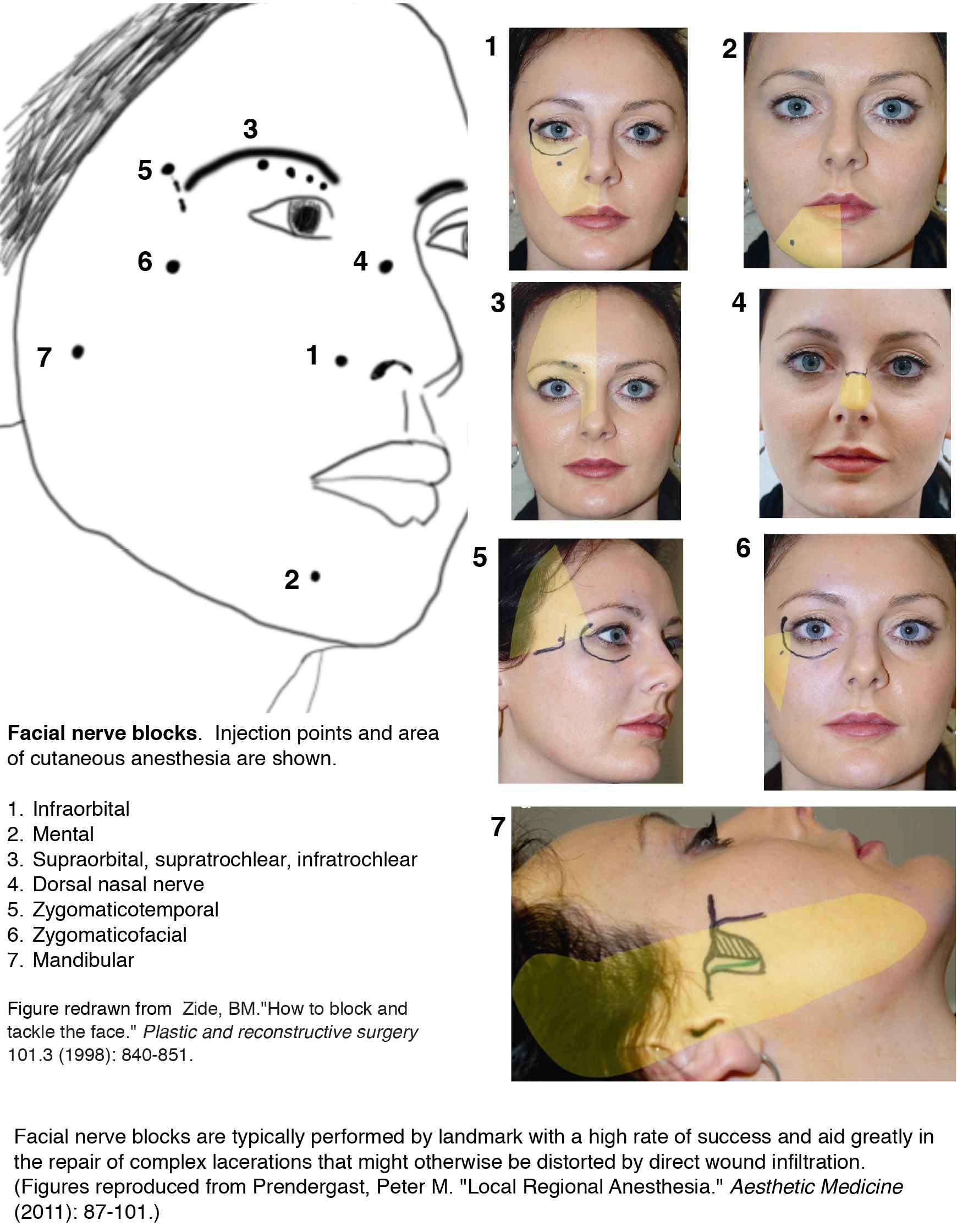 face blocks.jpg