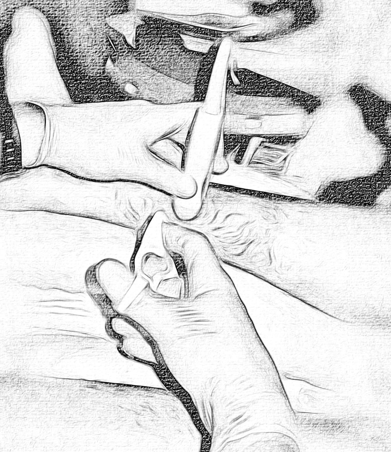 sketch hand detail posterior tibial.jpg