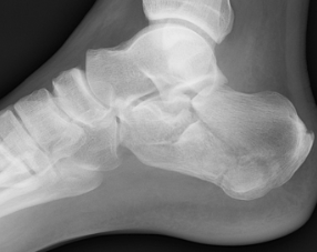 calcaneous fracture.png