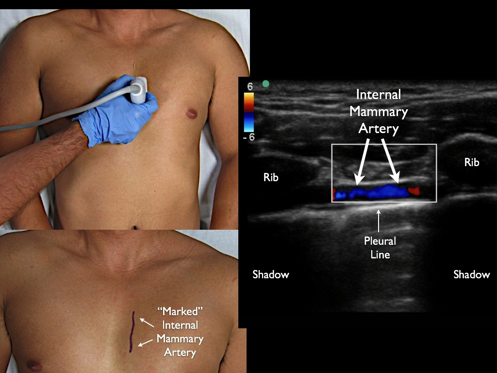1) If effusion very midline, locate the mammary arteries with Linear Probe (optional)