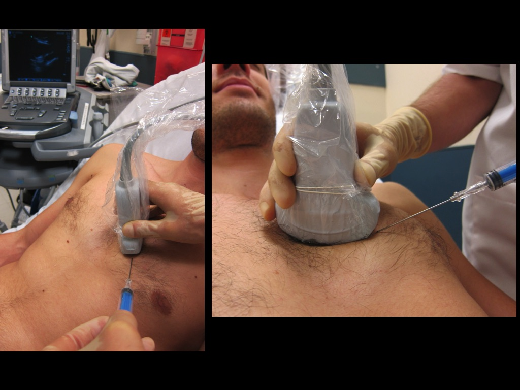1) Ultrasound screen in field of view  2) Local anesthetic in skin and muscle  3) Low dose etomidate or ketamine just before entering pericardial sac  4) In-plane with needle visualization