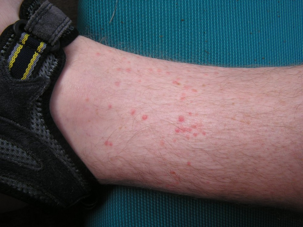 Help, I'm getting bit! A Guide to identifying bug bites  — Expert