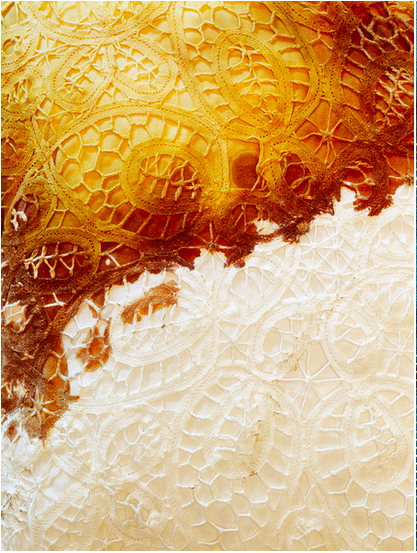 SarahSudhoff  Illness, Female, 60 years old, 2010  Archival Pigment Print  40 x 30 inches