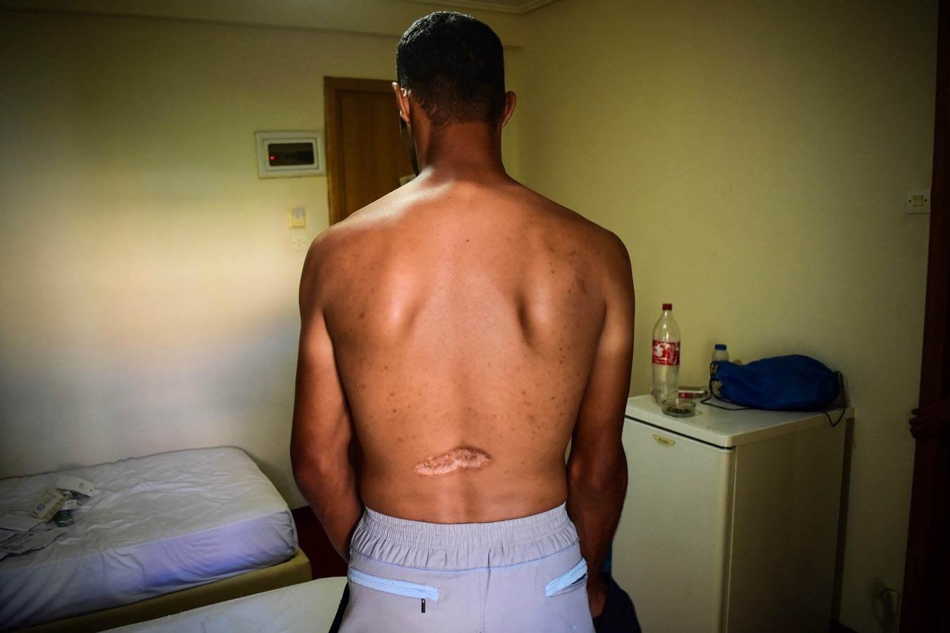 A Syrian asylum-seeker in Greece, who was tortured before the war and has a scar from a bullet that hit him during an attack in Syria.