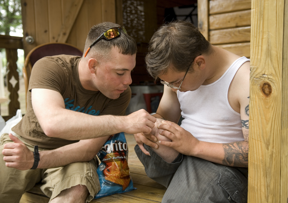 """Jeffers shows Sgt. Joseph Tocci scars from the wounds he received in Iraq. """"This is where they took out the first piece of shrapnel,"""" he said."""