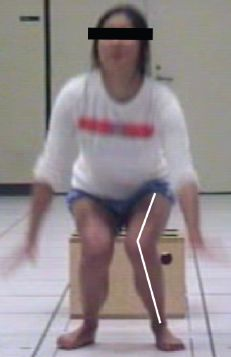 This is a valgus collapse. Yes, it looks as bad as it sounds.