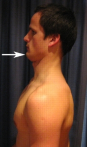 Packing the neck - terrible for selfies, great for deadlifts.