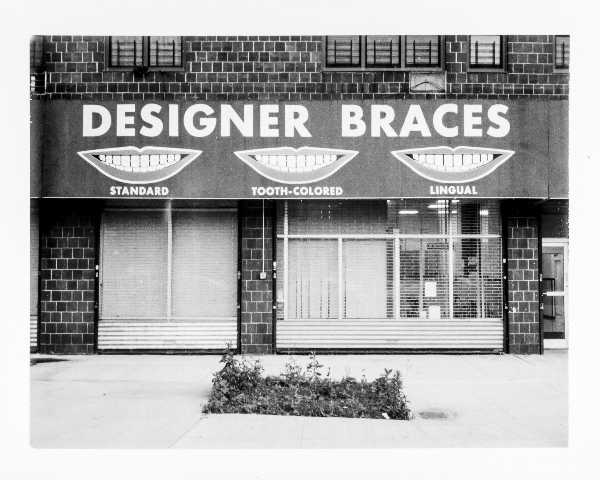 20140701_designer_braces_01.jpg