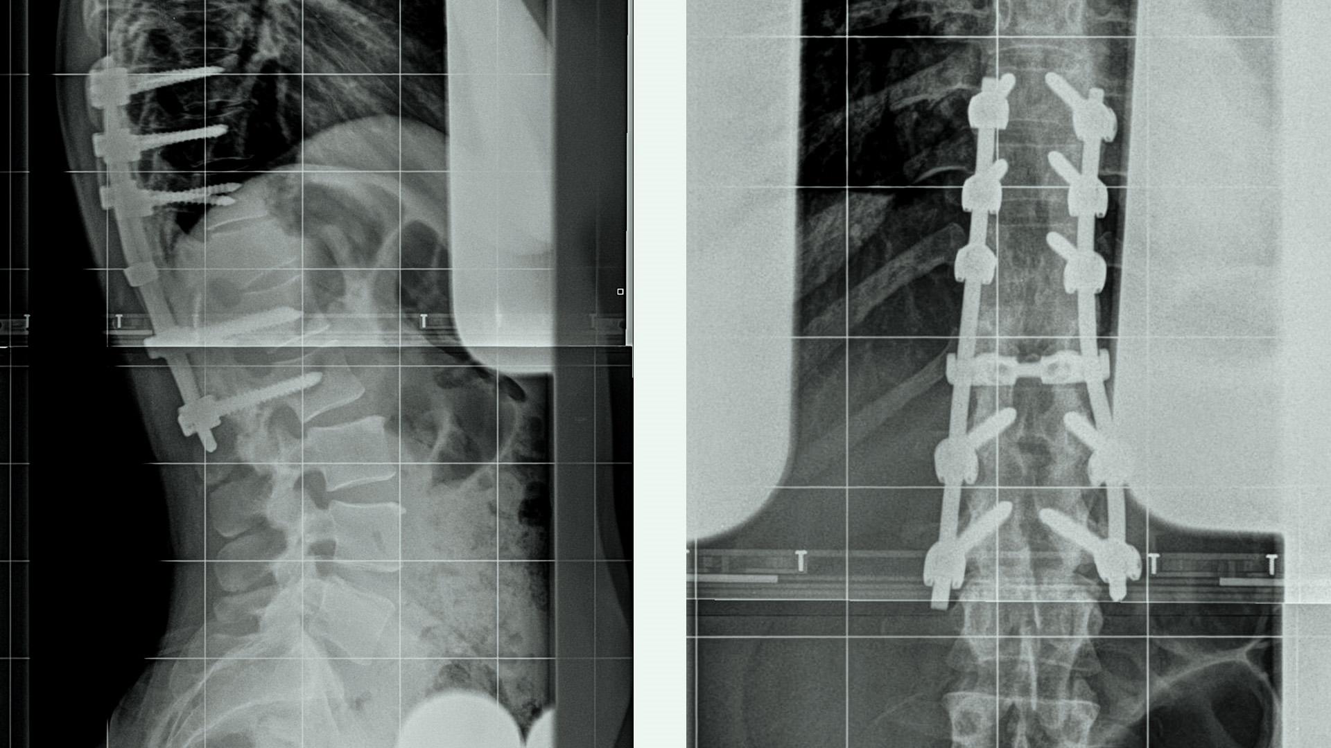 An x-ray of dancer DeeAnn Nelson's spine.