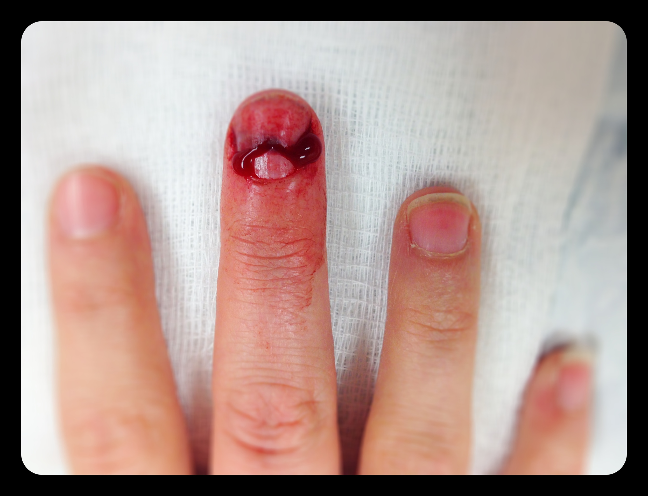 Good news and bad news. Bad = Door broke all the way through both my nail and bone. Good = Door only went through the center of finger, which means sides are still attached and will heal. Six weeks in a splint and 6 months for complete healing.