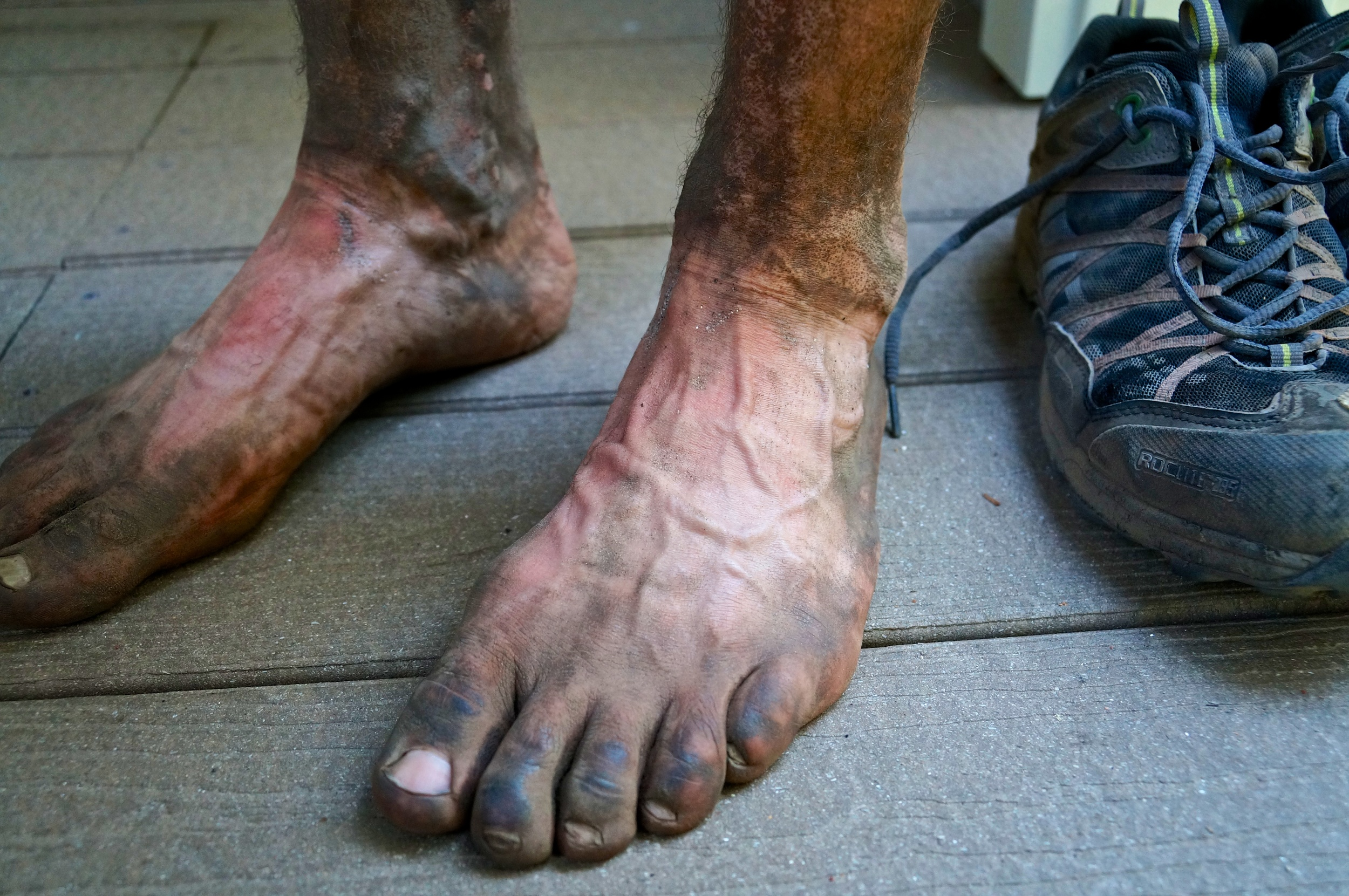 Julian's feet after many miles traveled on some great trails...